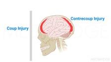 Brain Injury: Epidemiology, Pathophysiology, Etiology and Levels