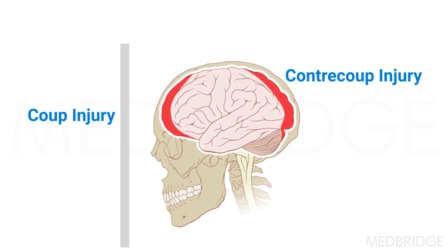 Brain Injury: Epidemiology, Pathophysiology, Etiology and Levels