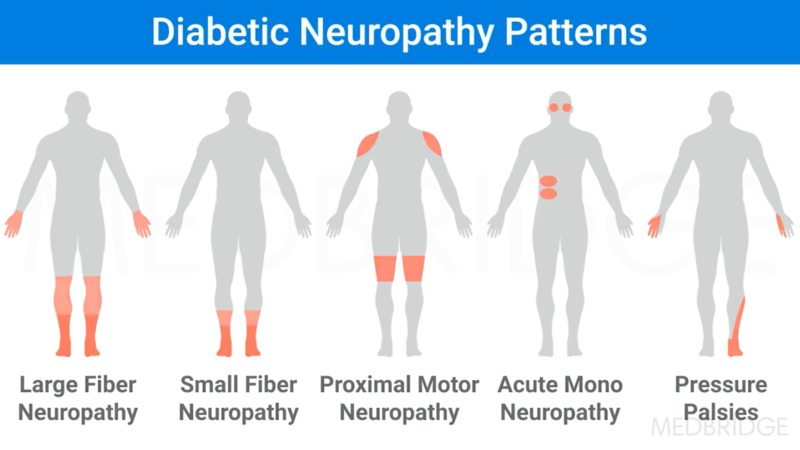 Peripheral Neuropathies Part 2: Management of Common