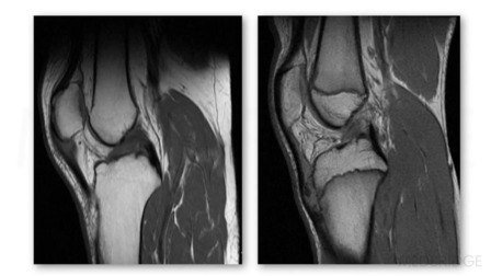 Sports & the Pediatric Knee Part 1: Injuries & Surgical Interventions