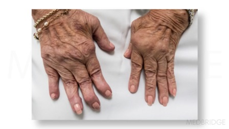 Arthritis: Considerations for the Home Care Nurse