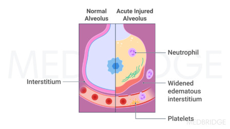 Clinical Concepts for COVID-19: Pathophysiology and Related Impairments