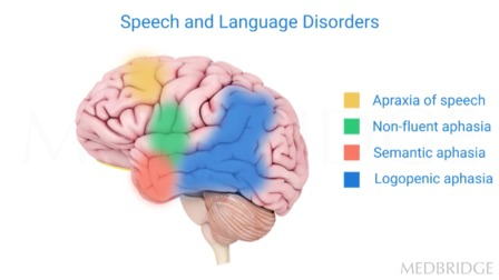 Primary Progressive Apraxia of Speech: Differential Diagnosis, Neurologic Underpinnings, and Management