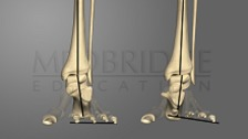 Abnormal Foot Characteristics and Overuse Injuries