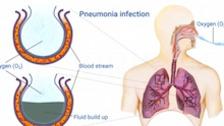 Respiratory Pathophysiology