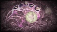 Alveolar defenses & Overall Summary