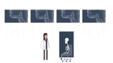 Dysphagia Background