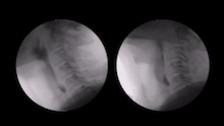 Determining Swallowing Efficiency from Videofluoroscopy