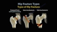 Hip Fracture Classifications and Fixations
