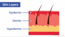 Anatomy and Physiology, Skin Lesions