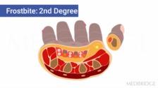 Environmental Exposure and Contact Dermatitis