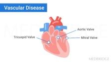 The Cardiovascular System: Hypertension, Coronary Artery Disease, Valvular Disease