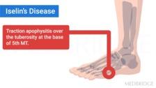 Apophysitis