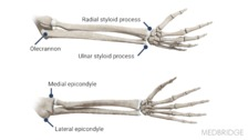Basic Anatomy of the Forearm, Wrist, and Hand