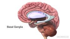 Dystonia, Choreoathetosis, and Ataxia
