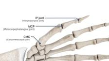 The Short Opponens Orthosis