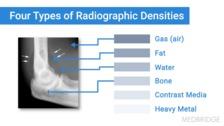 Basics of Musculoskeletal Imaging