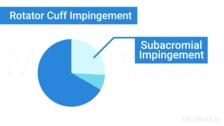 Shoulder Impingement and Rotator Cuff Syndrome