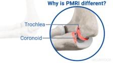 Posteromedial Rotatory Instability