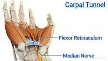 Carpal Tunnel Syndrome: Assessment, Biomechanics, and Treatment