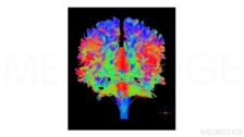 Imaging Human Brain Structure