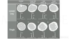 Identified Biomarkers