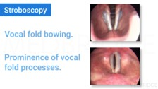 Common Pathologies of the Vocal Folds, Their Origin, Impact On Voice, and Potential Treatment Options