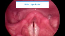 Laryngeal Imaging: What, Why, and When