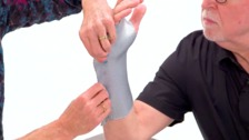 Static Progressive MCP Joint Flexion Orthosis
