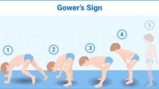 Common Congenital Conditions Seen in Pediatric Rehabilitation