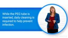 Tube Feeding Basics