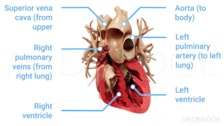 Definition, Pathophysiology, and Common Causes of HF