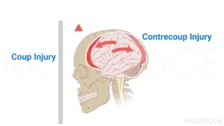 Mechanisms of Brain Injury
