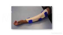 Tips for Successful Splinting (Orthotic Intervention) in Pediatric Hand Therapy