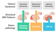 What is the Difference Between Alzheimer's and Dementia?