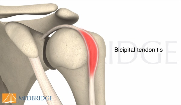 Subscribe to view Bicipital Tendonitis