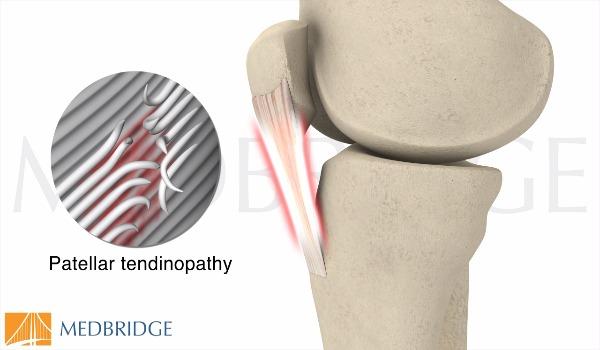 Subscribe to view Patellar Tendinopathy