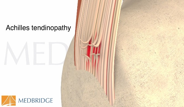 Subscribe to view Achilles Tendinopathy