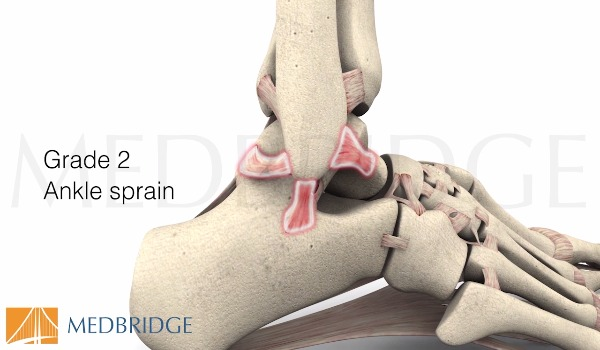 Subscribe to view Lateral Ankle Sprain