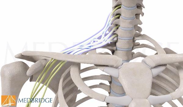 Subscribe to view Brachial Plexus Injury
